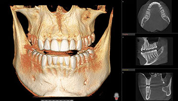 CBCT imagery allows Dr Matthew Bender and Dr Scott Lewis to plan dental implants at Meadowbrook Dental.